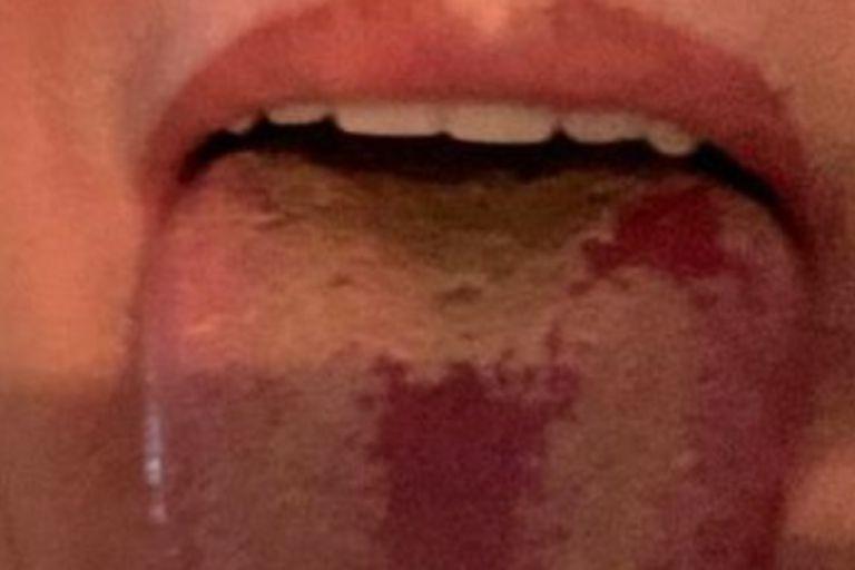 Lesiones en la lengua por Covid