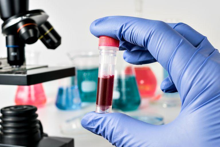 El informe, que elabora cada año la Dirección de Sida, ETS, Hepatitis y TBC de la Secretaría de Salud, analiza las notificaciones nuevas hasta 2017