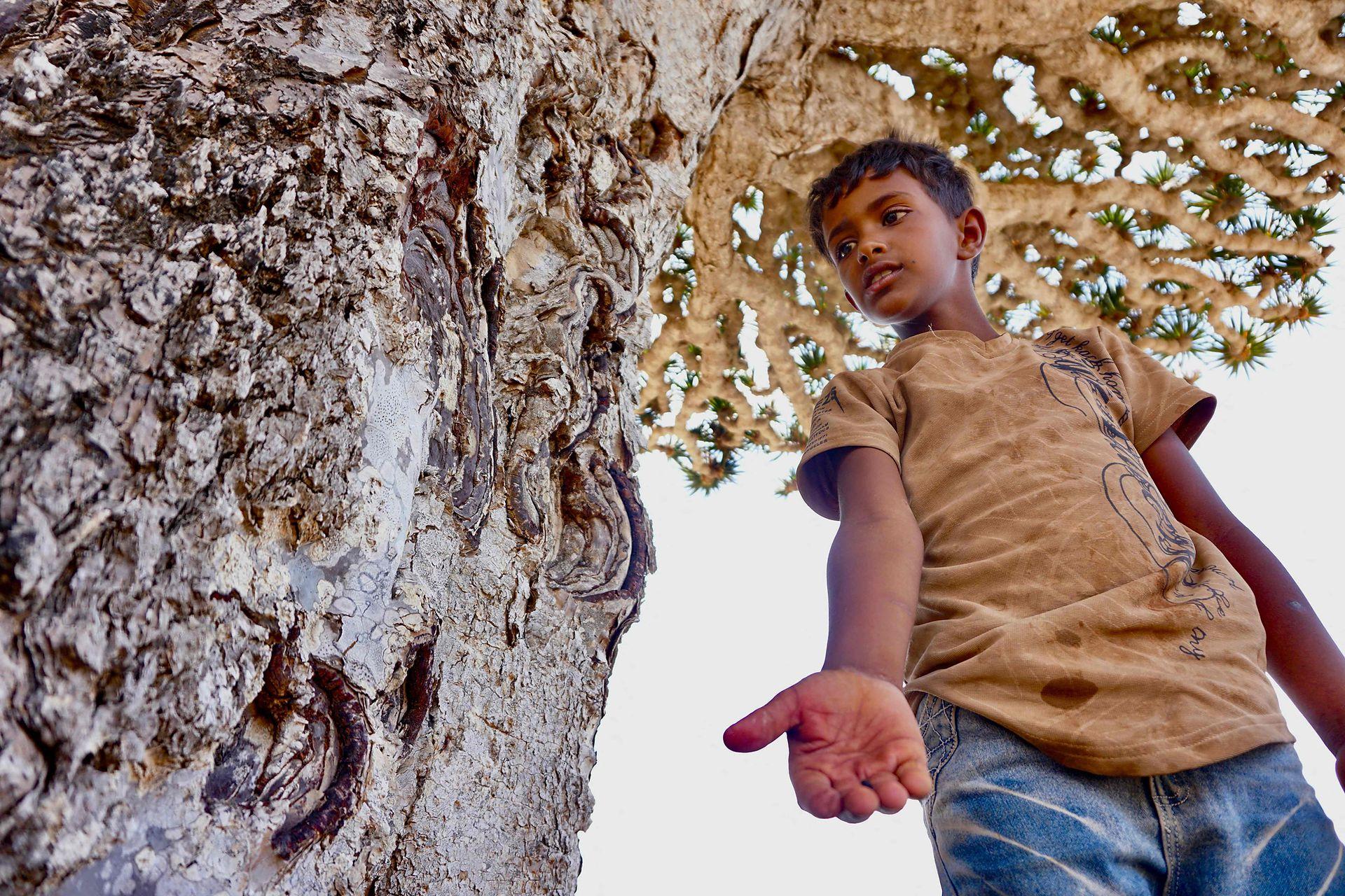 Un joven sostiene la resina roja del árbol de sangre del dragón