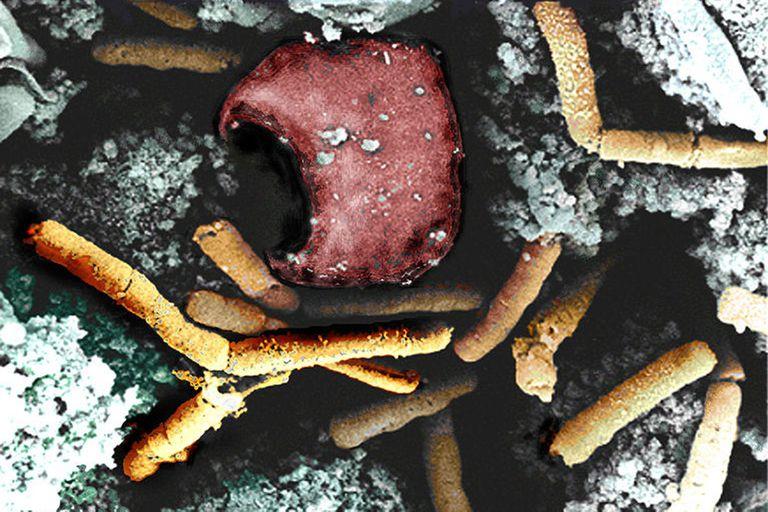 Los antecedentes de este patógeno empleado como arma bioterrorista no se conocían pero se presumían tremendos