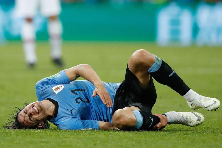 Edison Cavani de Uruguay salió lesionado frente a Portugal
