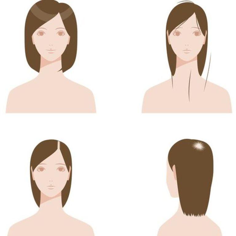Las mujeres no están exentas de la alopecia androgénica, más común en la población masculina