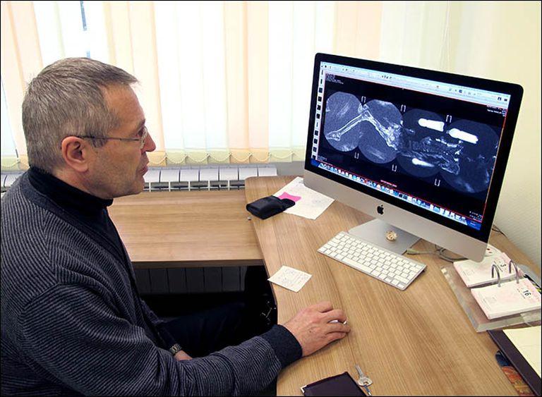 El doctor Andrey Letyagin observa la resonancia magnética que ayudó a determinar el cáncer que aquejaba a la mujer de Altái