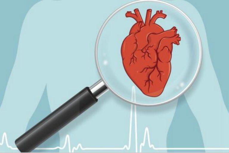 Para el doctor Wieselthaler, la imagen del coágulo debe servir para que la gente esté más pendiente de su salud