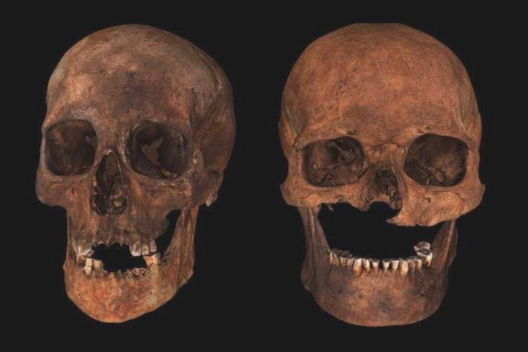 """Un grupo de investigadores utilizó el análisis de ADN para descubrir los secretos del apodado """"jefe de seis cabezas"""", hallado en una tumba de la Edad Media en Escocia"""