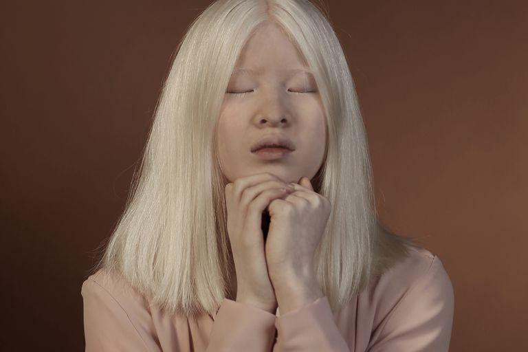 La bebé albina abandonada en China que se convirtió en modelo de Vogue