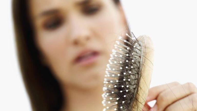 De acuerdo con expertos, los cabellos en el cepillo no son un motivo para alarmarse