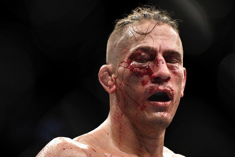 Desfigurado: las impactantes imágenes del rostro de un luchador de UFC