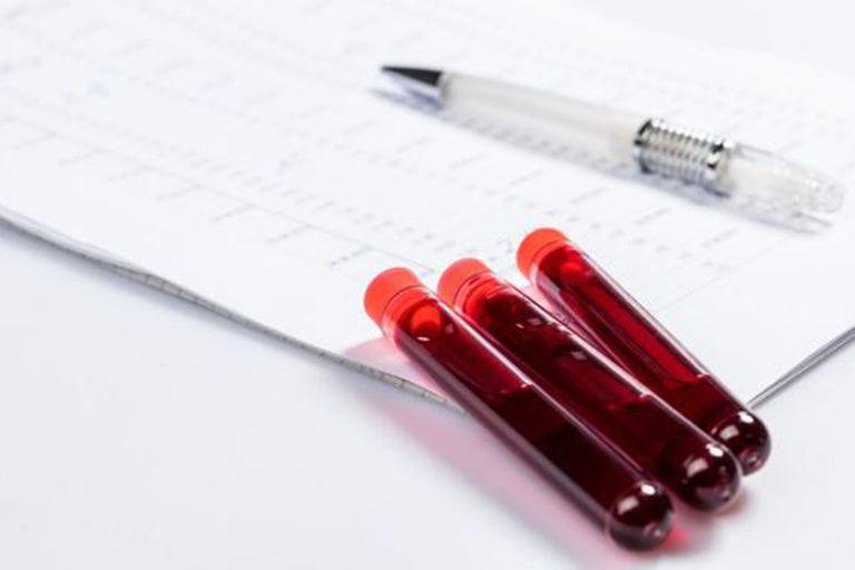 """En palabras simples, la septicemia es el """"envenenamiento de la sangre"""""""