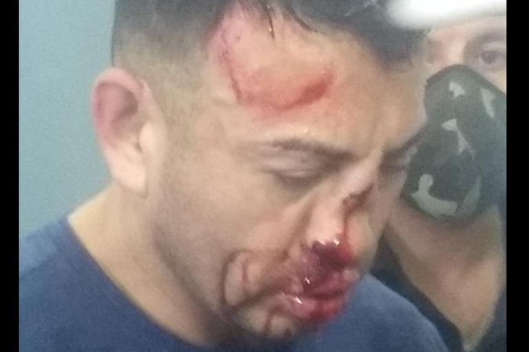 Al femicida de Los Toldos le dieron una paliza y le destrozaron la cara