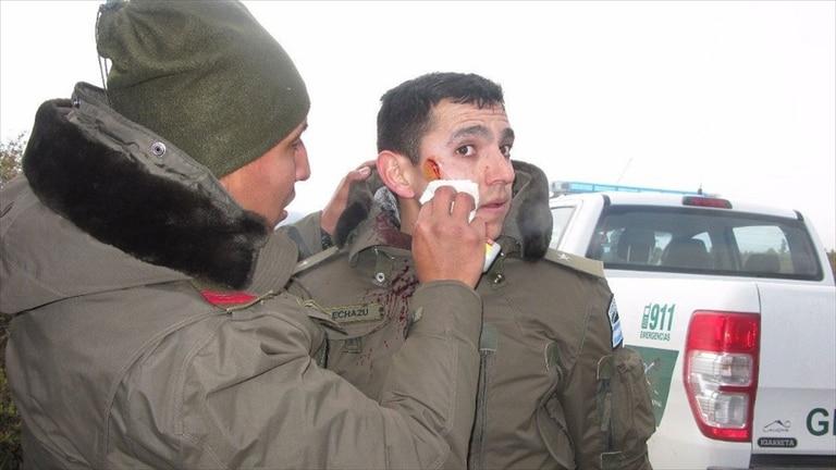 El subalférez Echazú sufrió una lesión en el rostro el día del operativo