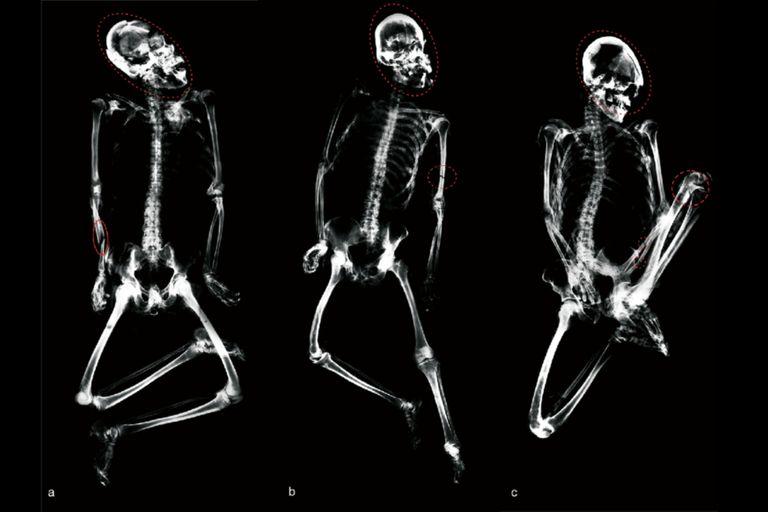 Tres individuos encontrados en una fosa común en posiciones corporales atípicas y con traumatismo letal en el cráneo por golpes de impacto y fracturas en los antebrazos y el húmero