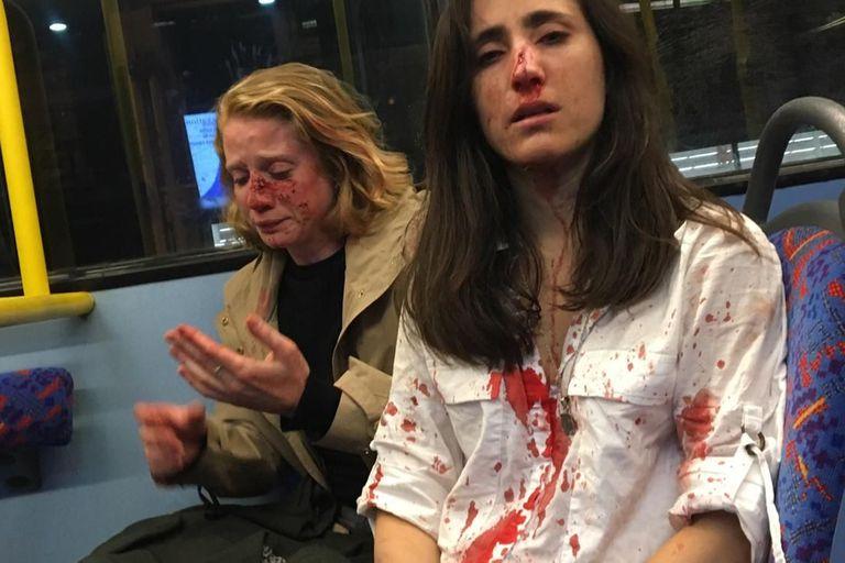 Londres: al menos cinco detenidos por el ataque homófobo a una pareja de mujeres