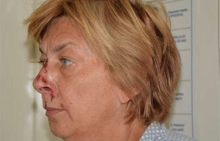 La mujer fue encontrada desorientada y con golpes en la cara