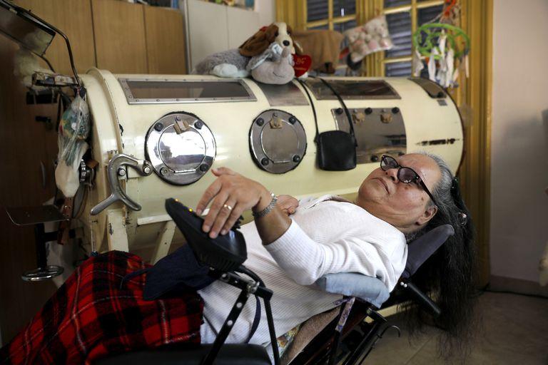 Susana Gómez debe dormir en un pulmotor por las secuelas de la polio
