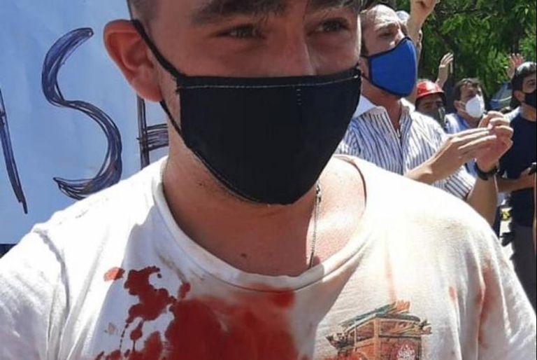 Uno de los manifestantes heridos