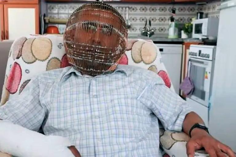 Desesperado: un hombre se puso una jaula en la cabeza para dejar de fumar