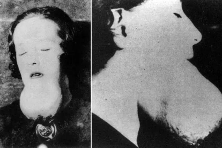 Una pintora de esferas de relojes con sarcoma en su barbilla