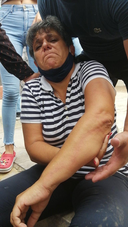 Gabriela Neme, la concejala de Formosa, herida tras la represión policial