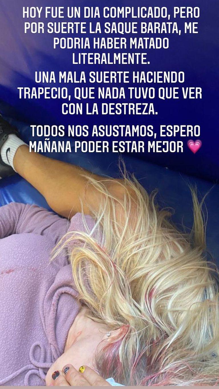 Luciana Salazar le contó a sus seguidores que sufrió un accidente y difundió una foto de su cabeza ensangrentada