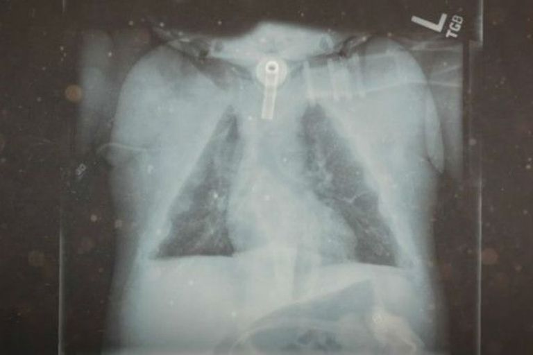 Los cartílagos de Janelly eran tan increíblemente finos y frágiles que no se apreciaban en las radiografías