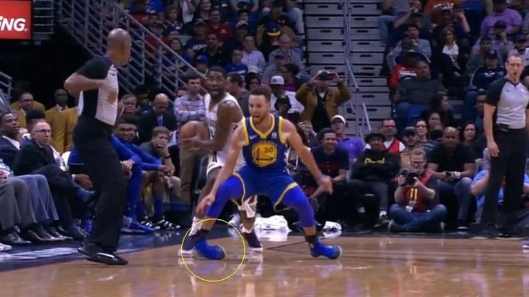 La lesión de Curry