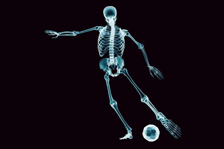 Deporte y salud: ¿qué tipo de ejercicios te ayudan a tener huesos más fuertes?