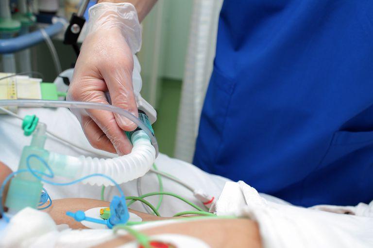 El paciente es un hombre de 80 años que quedó internado en Cipolletti, donde recibe oxígeno, pero no accedió a un respirador automático porque el hospital local cubrió toda su capacidad