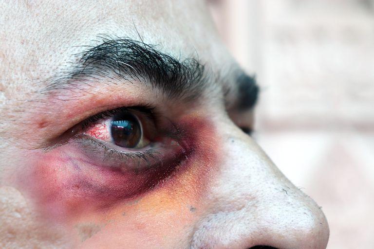 Hongo negro: 6 preguntas sobre la rara infección que ataca a pacientes de  Covid-19 en India - LA NACION