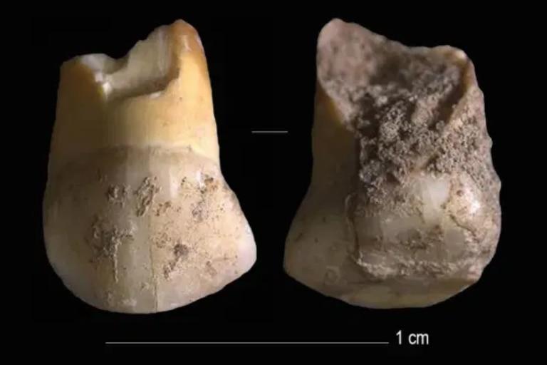 Los dientes crecen y registran información en líneas de crecimiento, similares a los anillos de los árboles