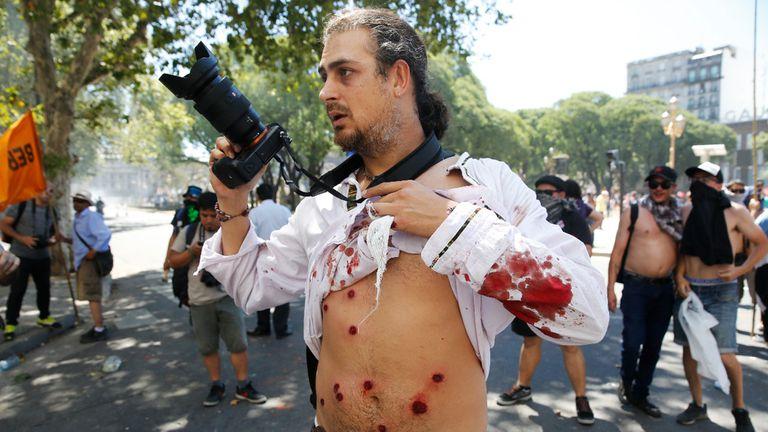 El fotorreportero de ARGRA, Pablo Piovano, herido por las balas de goma