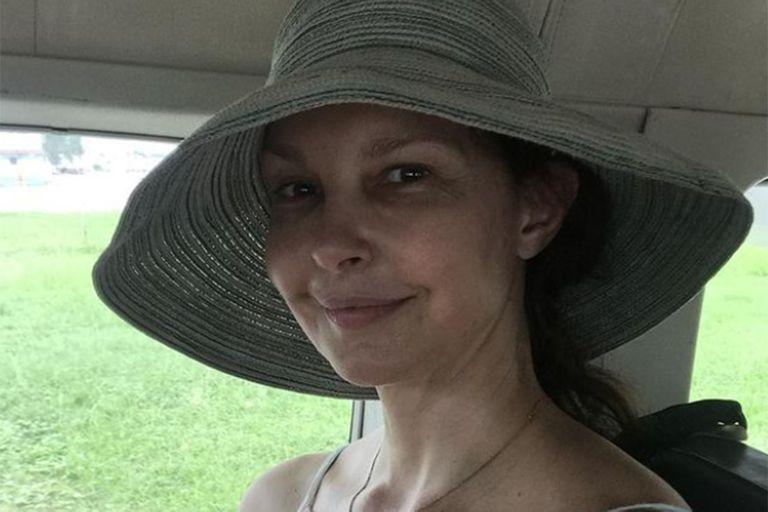 Ashley Judd mostró cómo quedó su pierna después de accidentarse en El Congo