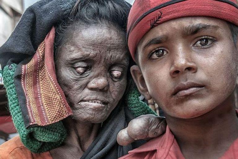 Cerca del 80% de todos los casos nuevos ocurren en India, Brasil e Indonesia.