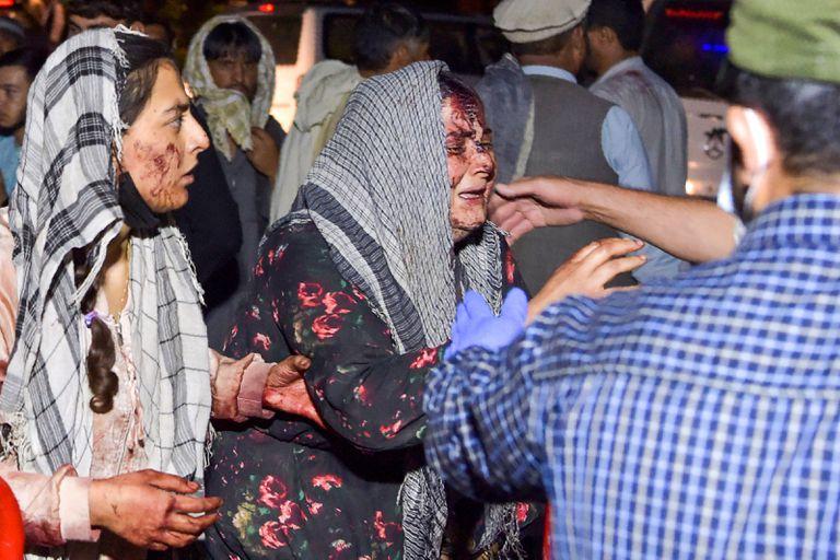 Una mujer herida en las explosiones cerca del aeropuerto de Kabul llega a un hospital para ser atendida