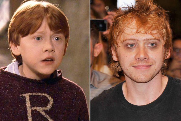 Rupert Grint, en tiempos de Harry Potter y en la actualidad