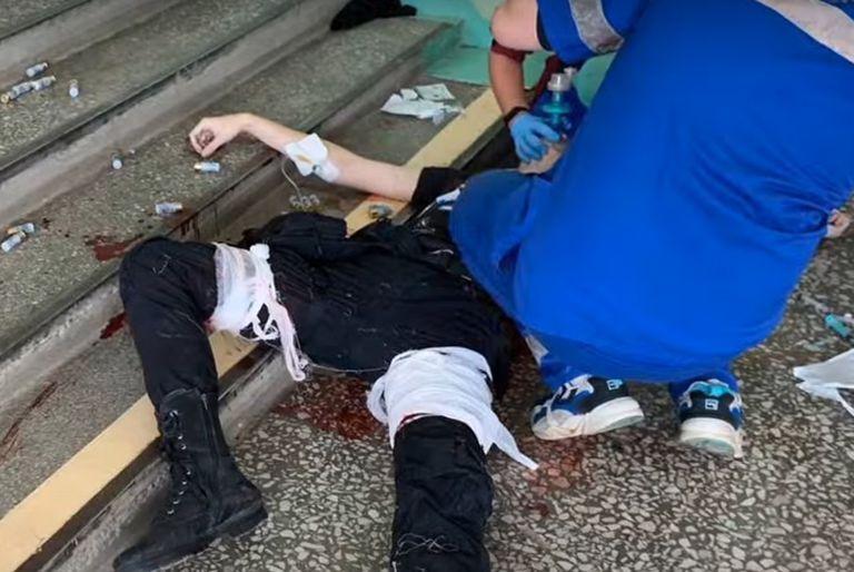 El hombre fue detenido tras el ataque