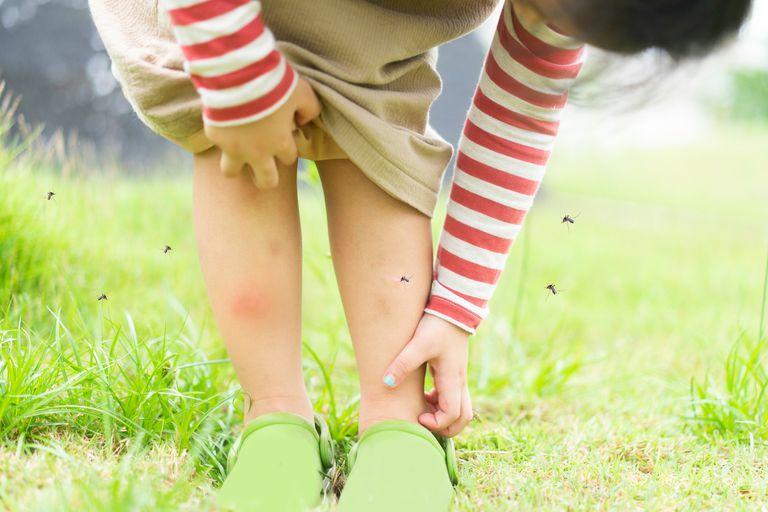 El olor a ácido láctico de los pies atrae a los mosquitos; es diferente en cada persona; las piernas funcionan como chimeneas del olor
