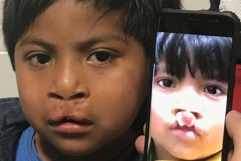 Víctor tiene cuatro años, llegó desde el Impenetrable para su segunda operación. El año pasado fue corrección del labio, ahora reconstrucción del paladar