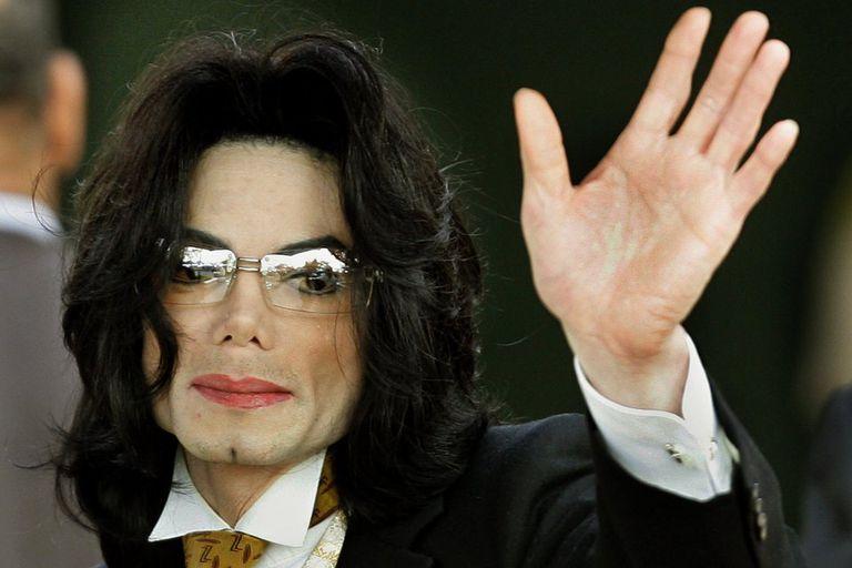Michael Jackson sufrió la despigmentación causada por el vitíligo