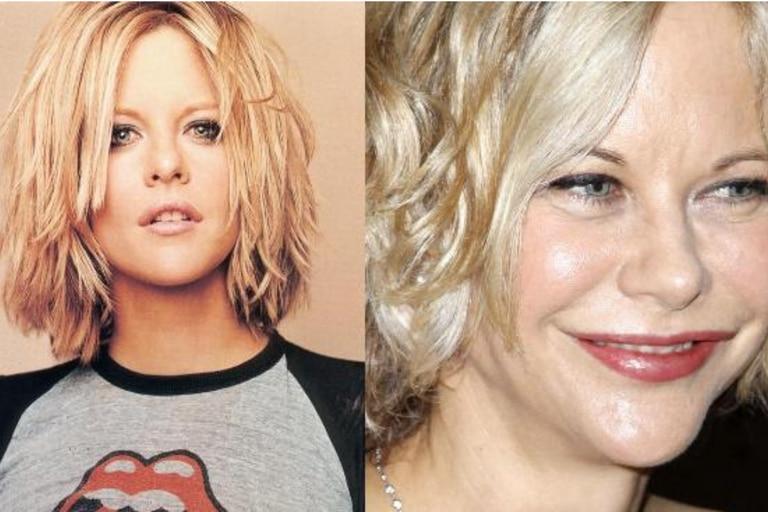 Meg Ryan en los años 90 y ahora