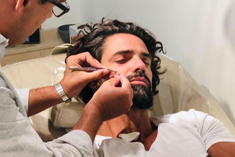 Luciano Castro se accidentó haciendo surf y terminó con una sutura en la cara