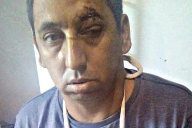 Bombas y golpes: se multiplica la violencia política en el territorio bonaerense