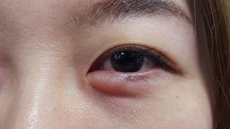 Qué son las alergias medicamentosas