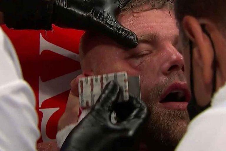 La grave lesión de Billy Joe Saunders, que tuvo que ser hospitalizado tras el golpe de Canelo Alvarez