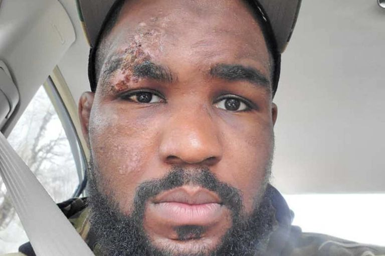 El luchador se desmayó en medio del bosque y, según un médico, su corazón estuvo paralizado