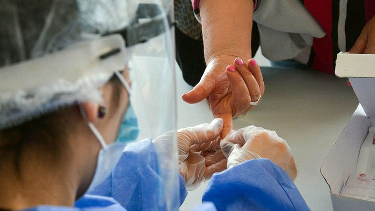 La Anmat aprobó un test rápido que detecta anticuerpos para coronavirus