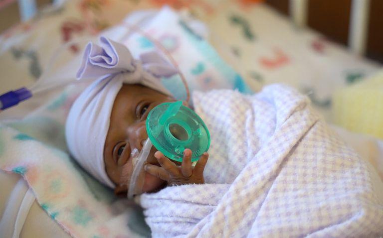 Nació la bebé más prematura del mundo: pesa lo mismo que una manzana