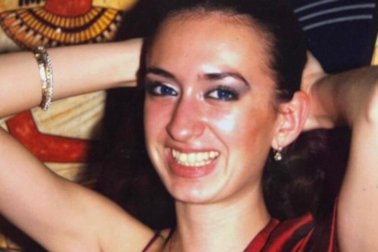 Anastasia Pokreshchuk mostró cómo cambió su rostro antes de convertirse en la mujer con los pómulos más grandes del mundo, luego de hacerse múltiples cirugías durante seis años