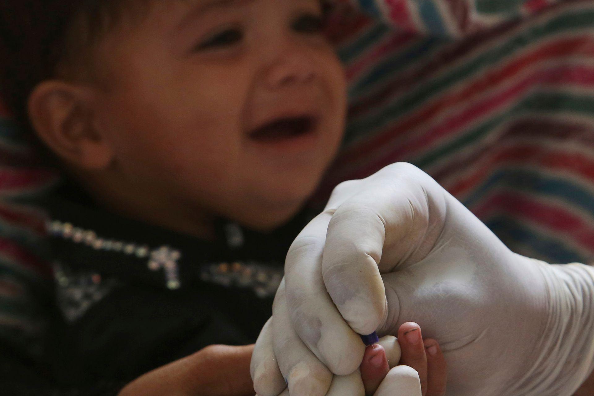 Un médico toma muestras de sangre a un niño, en el hospital de Ratodero