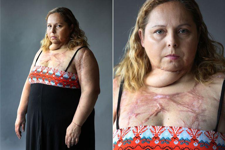 Karina Abregú sufrió un intento de femicidio: Gustavo Javier Albornoz la roció con alcohol y la prendió fuego.